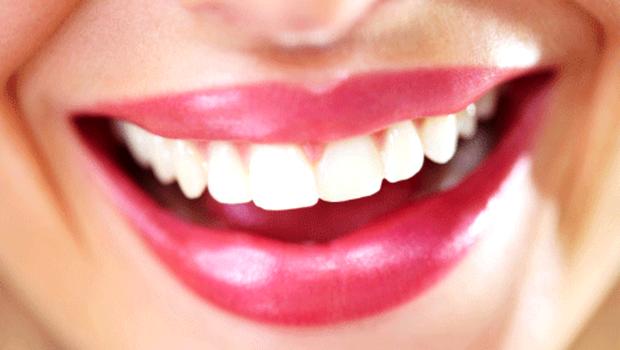Voici une astuce « spéciale »pour avoir des dents plus blanches